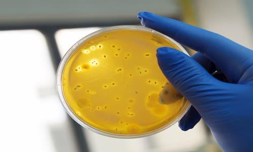 شمارش کلی میکروارگانیسم ها در مواد غذایی